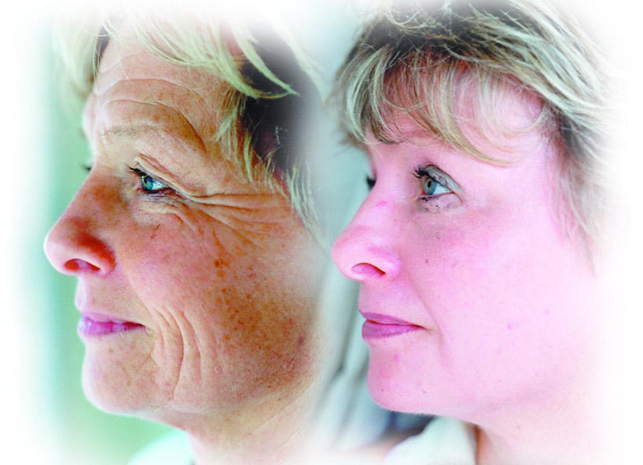 Resultado de imagen para forma fisica con terapia antivejez