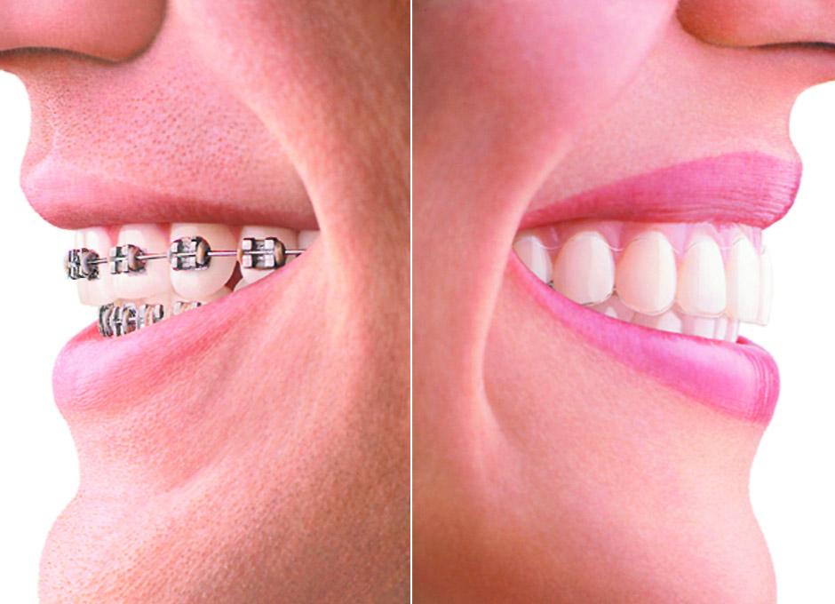 invisalign la forma invisible de alinear los dientes dsalud