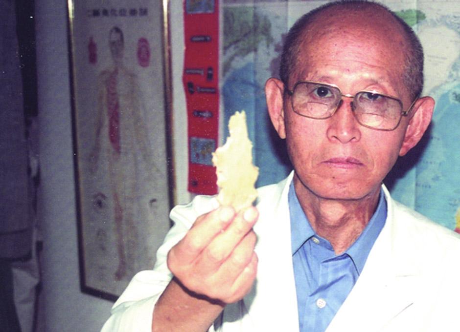 tratamiento laetrile para el cáncer de próstata