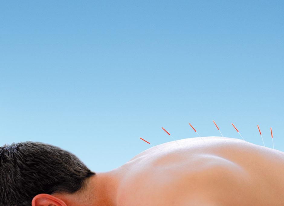 tratamiento de acupuntura para la diabetes