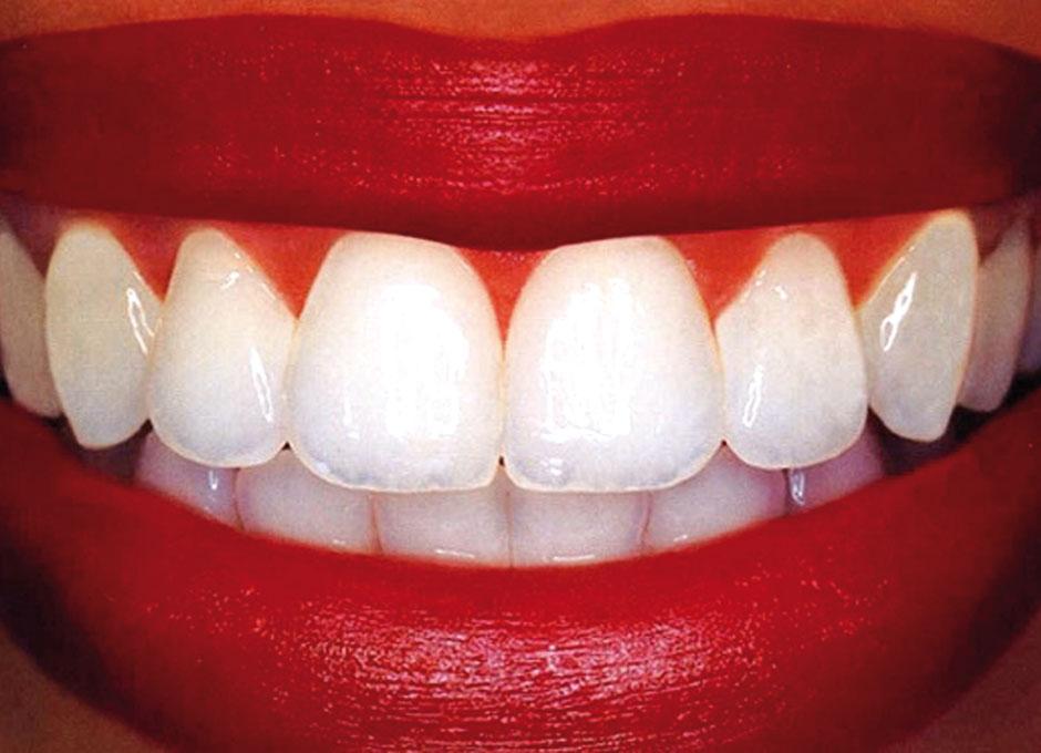 C mo prevenir y tratar las caries dentales de forma natural dsalud - Titulo manipulador alimentos ...