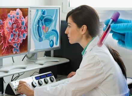 Cómo prevenir y tratar eficazmente de forma natural los problemas de próstata