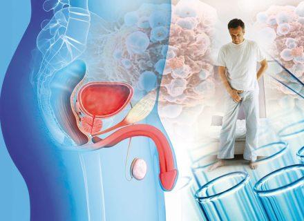 Cómo prevenir y tratar eficazmente de forma natural los problemas de próstata (II)